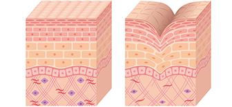 皮膚のコラーゲンを活性化させる