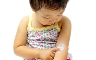 小児皮膚科診療における、当院の特徴